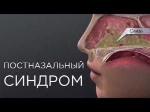 Постназальный синдром
