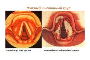 Круп/Острый стенозирующий ларинготрахеит