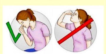 Эпистаксис (Носовые кровотечения)