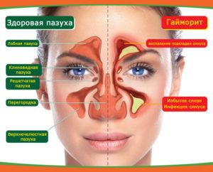 Применение физиопроцедур при лечении гайморита